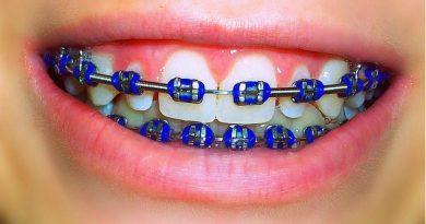 Think-twice-before-teeth คิดให้ดีก่อน ?จัดฟัน?