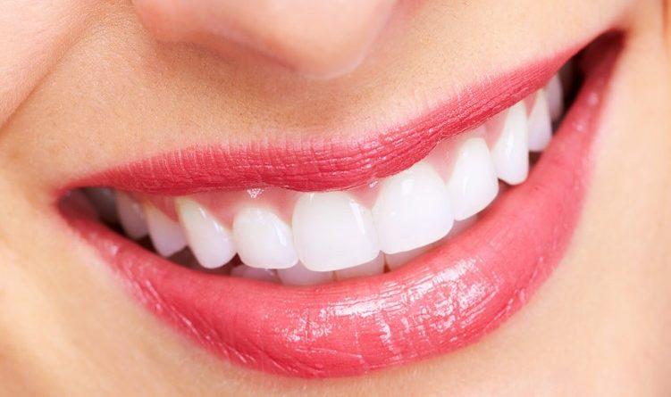 'ฟอกสีฟัน' ทางเลือกดีๆสำหรับคนอยากมีฟันขาว