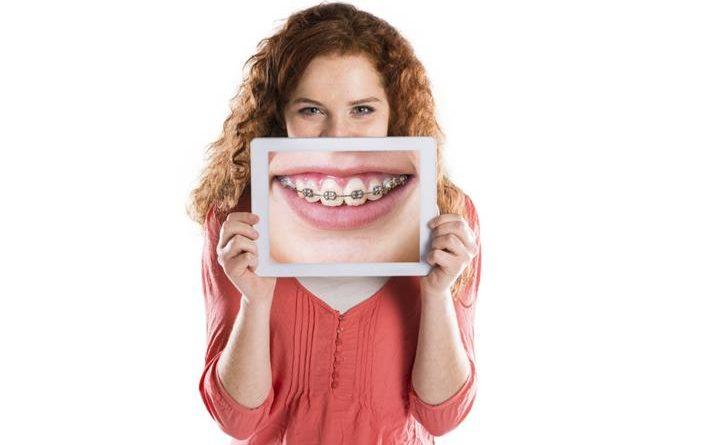 จัดฟัน ดีเสียอย่างไร