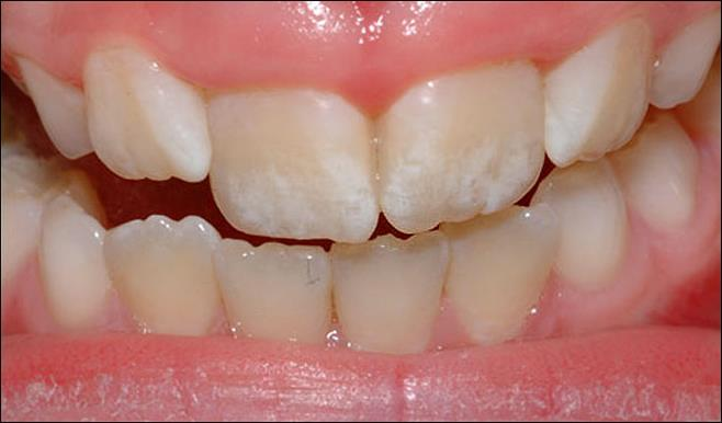แปรงฟันมากไปเสี่ยงภัย [ฟันตกกระ]