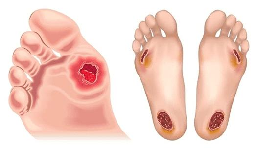 มนุษย์เบาหวานทำไมต้องกลัว - ตัดเท้า