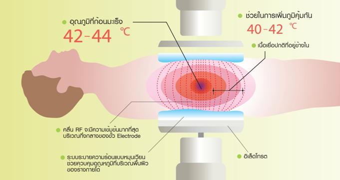 Nursing Informatics: Thermotron-RF8 รักษามะเร็งด้วยความร้อน