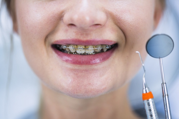 Close-up of a woman's teeth with braces Free Photo