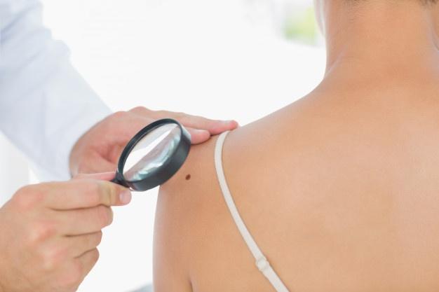 Doctor examining melanoma on woman Premium Photo