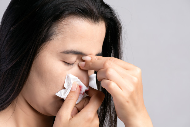 Nosebleed ,woman suffering from nose bleeding and using tissue paper Premium Photo